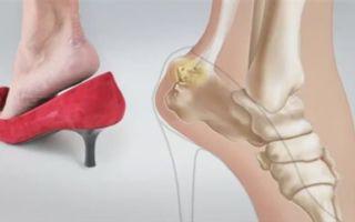 Почему высокие каблуки вредны и чем их можно заменить