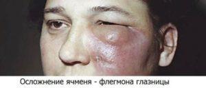 Ячмень на глазу у ребёнка: как лечить болезнь и не допустить осложнений